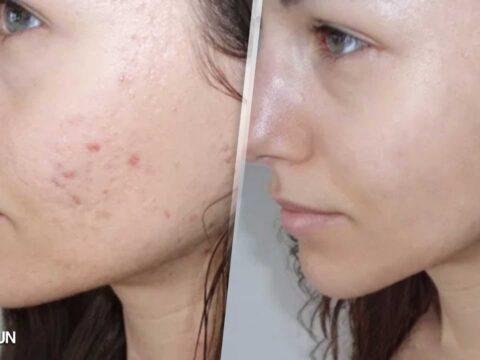 Elimina las marcas del rostro con Neostrata | ParaEstarBella