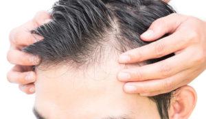 Evitar la caída del cabello antes del otoño