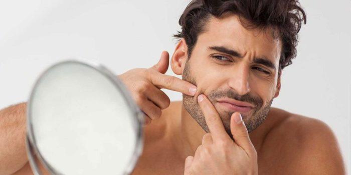 Consejos para tratar el acné en otoño