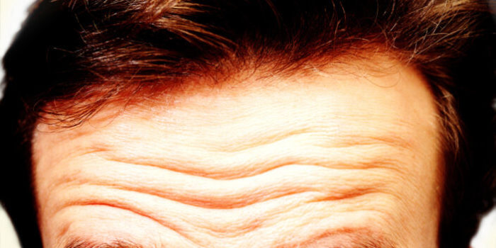 Cómo combatir las arrugas de la frente | ParaEstarBella
