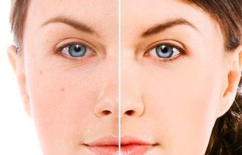 ¿Cómo tener la piel grasa y perfecta?