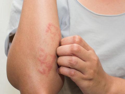 Cómo cuidar la piel atópica