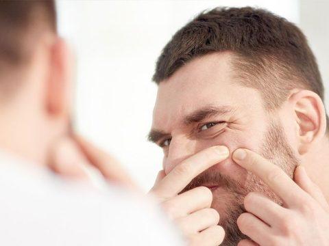 Consejos para eliminar el acné