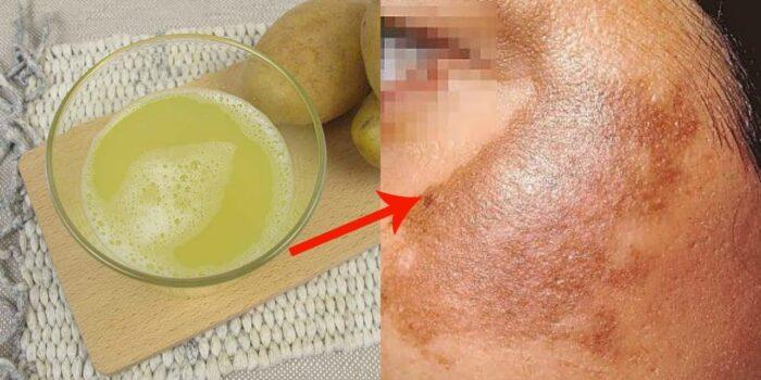 Como eliminar las manchas faciales