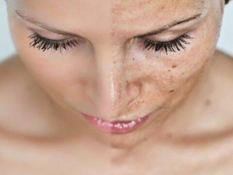 Cómo eliminar manchas faciales | ParaEstarBella