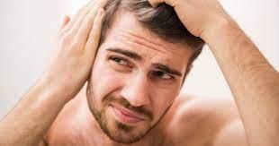 ¿Cómo puedo evitar la caída del cabello?